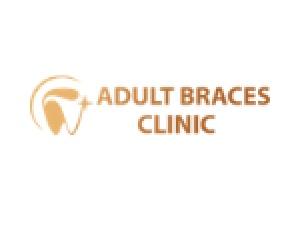 Adult Braces Clinic